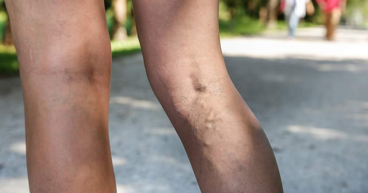 venele adânci varicoză vene