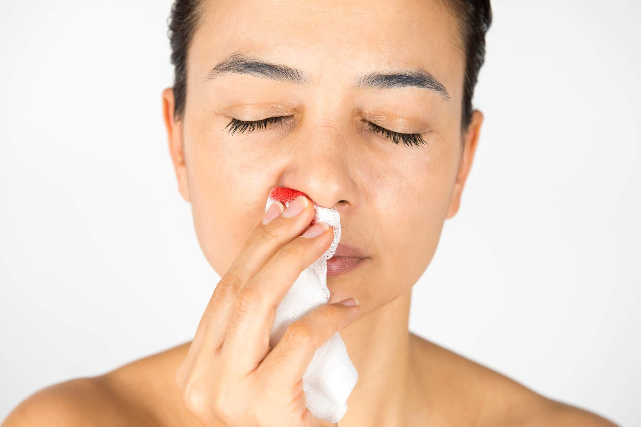 sângerarea din varicoză nas