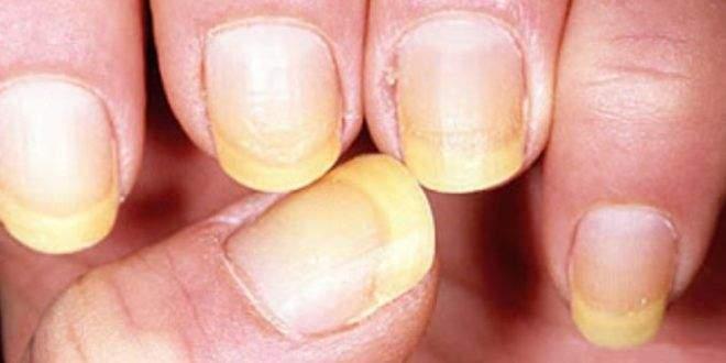 Doctor pentru unghii