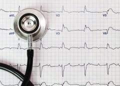 Ce este electrocardiograma? Interpretare rezultate EKG