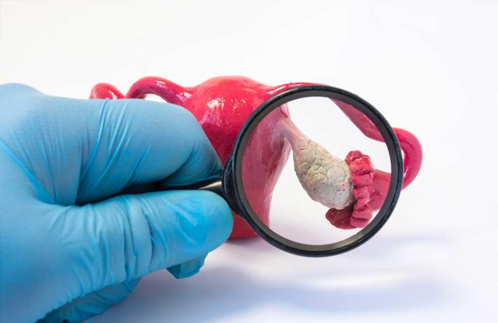 cancer ovarian la 25 ani? | Forumul Medical ROmedic