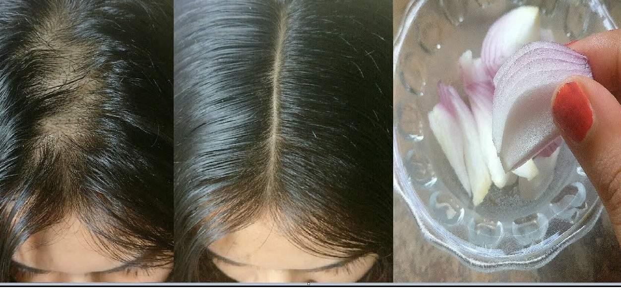 Alopecie areata usturoi