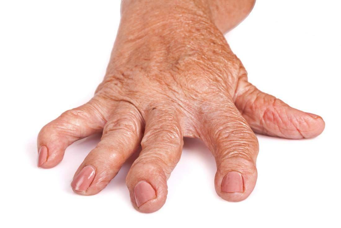 diagnosticul de tratament al simptomelor artrozei reumatoide)
