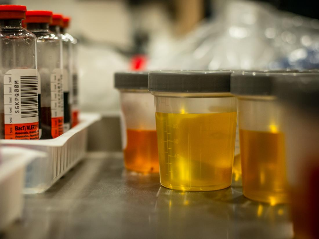 urină în tratamentul articulațiilor)